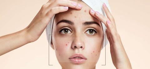 Acne Treatment Dewderm dubai