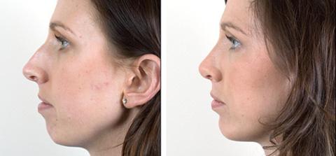 Chin Reduction dewderm dubai