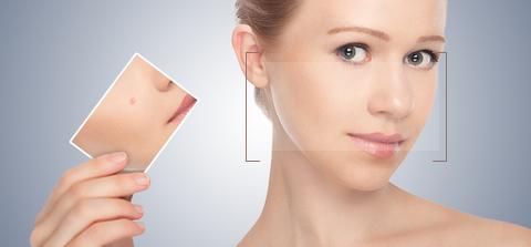 Dermatological Diseases Acne Treatment Dewderm dubai