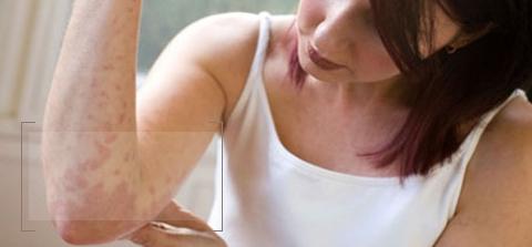 Eczema Treatment dewderm dubai