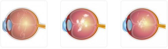 Eye Floater Treatment royal spanish center abu dhabi dubaiEye Floater Treatment royal spanish center dubai
