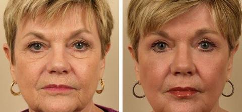 Eyelid Surgery Blepharoplasty dewderm dubai