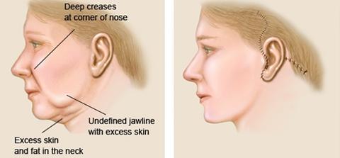 Face lift surgery dewderm dubai
