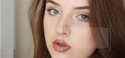 Freckles Treatment dewderm dubai