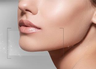 Laser Hair Removal chin dubai