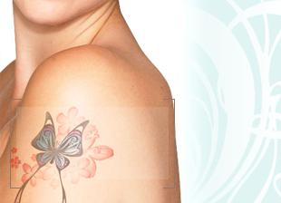 Laser Tattoo Removal Dewderm dubai