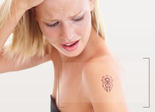 Laser Tattoo Removal dubai