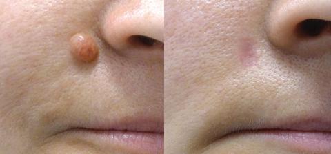 Mole Removal Surgery Dewderm dubai