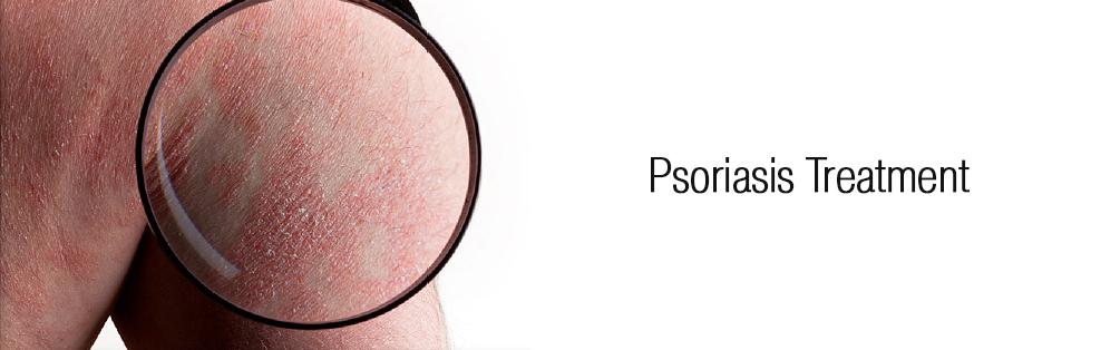 Psoriasis Treatment dewderm dubai