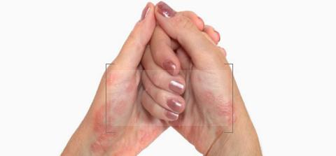 Psoriasis Treatment dubai