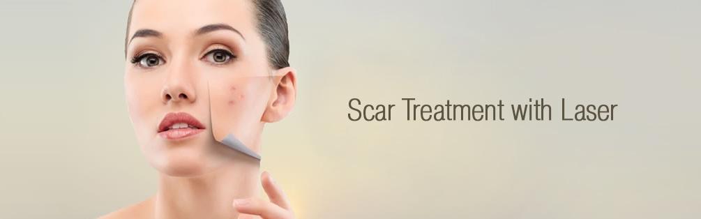 Laser Scar Treatment dubai