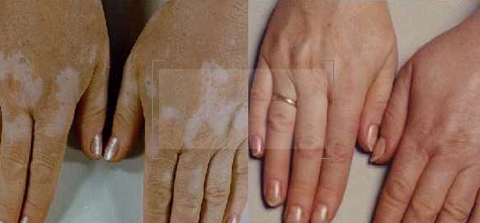Vitiligo Treatment dubai